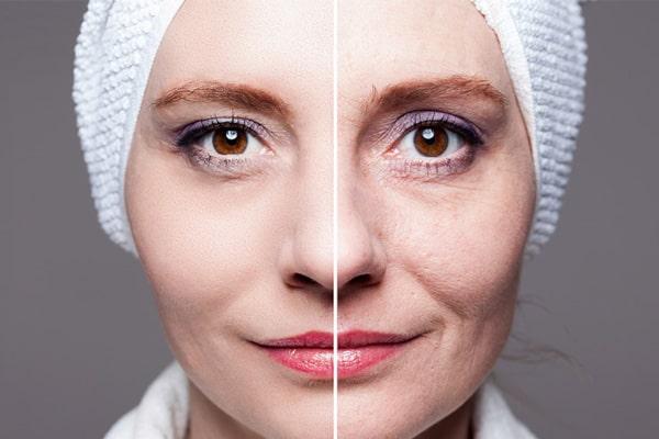 جوانسازی پوست | خیز