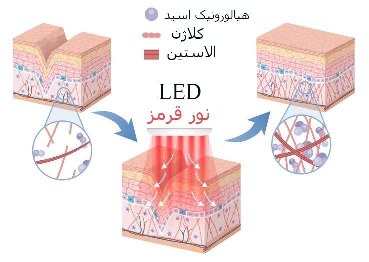 کلاژن و جوانسازی پوست | LED خیز