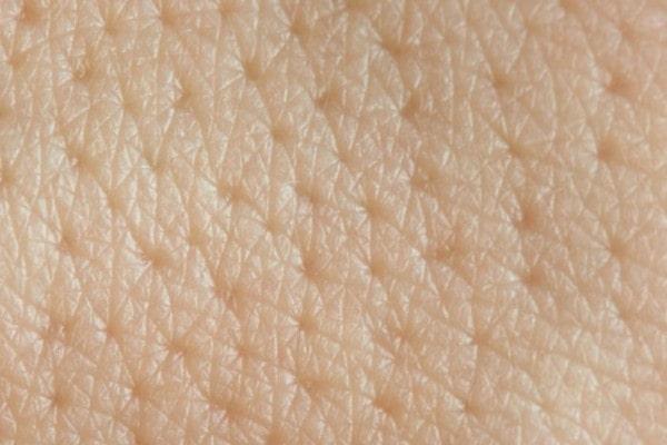 پوست جوان | خیز