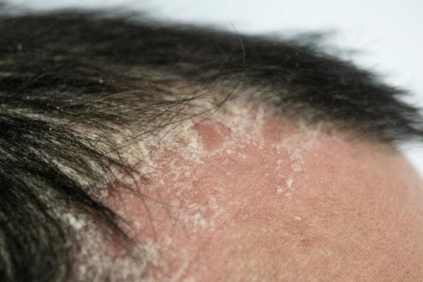 بیماری های پوست سر | خیز