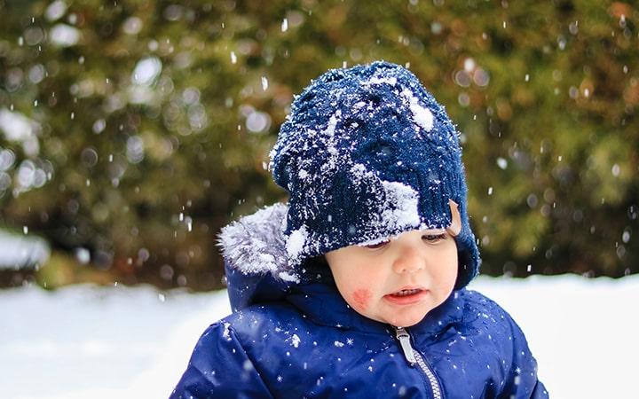 آلرژی به سرما   خیز