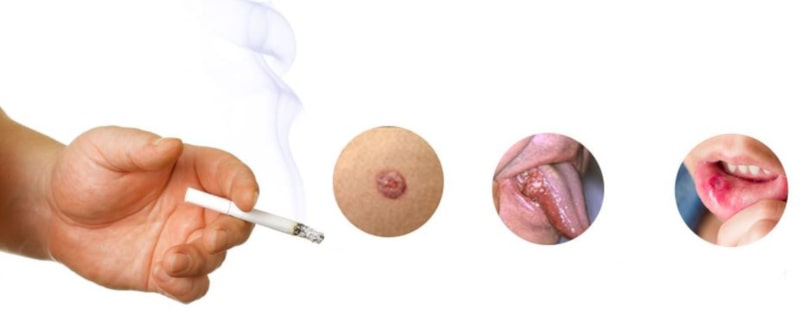 بیماری ها ناشی از سیگار | خیز