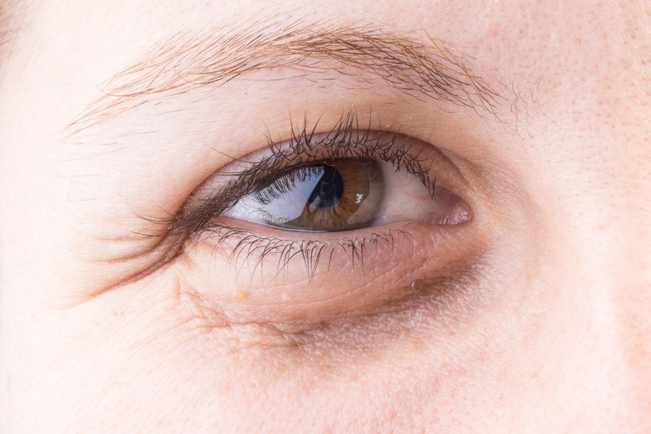 سیاهی و گودی زیر چشم کمبود خواب   خیز