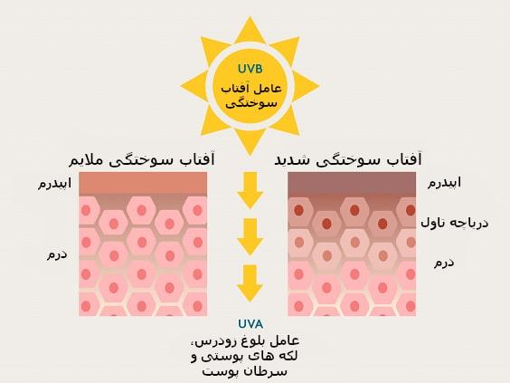 بیولوژی آفتاب سوختگی   خیز