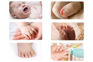 بیماری های ناخن کودکان   خیز
